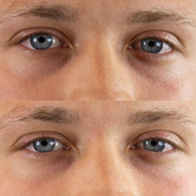marcelo eyes