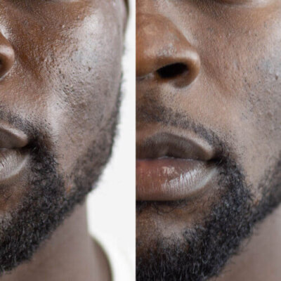 men's anti aging products